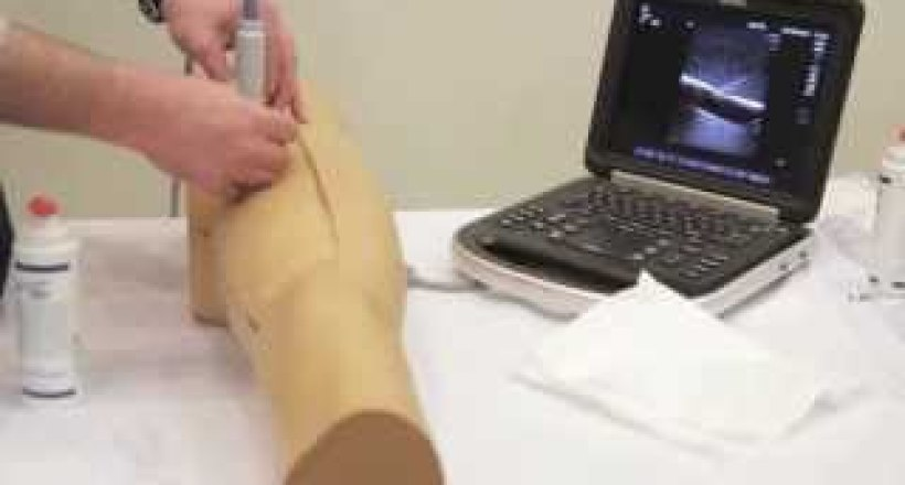 Ultrasound Guided Femoral Arterial Access